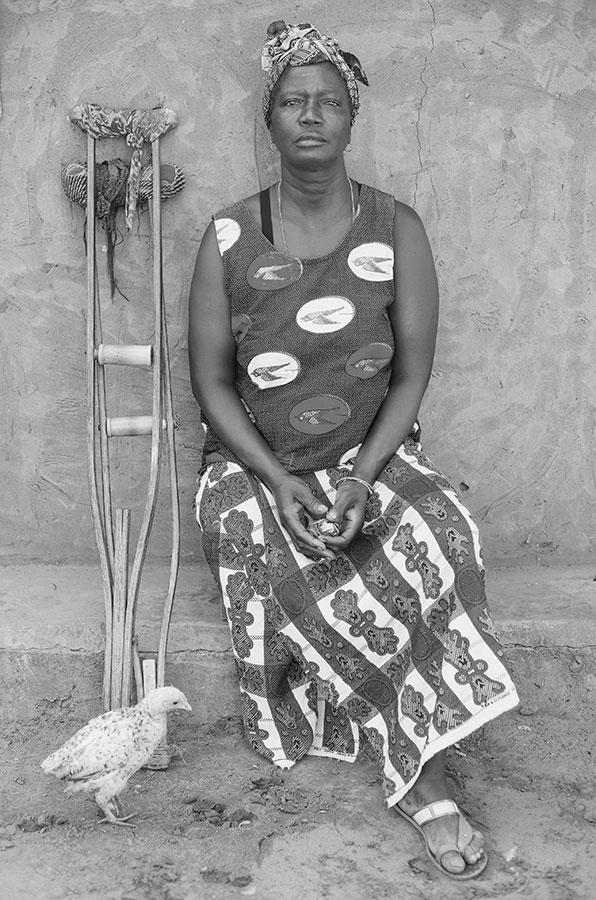 "Kinta Mane was in a car traveling from Guinea-Bissau to Senegal when the vehicle ran over a landmine. She lost one of her legs in the accident. ""I have given up on life,"" Mane said in her interview with Amanda Brinegar in 2011. (©Felipe Jacome)"