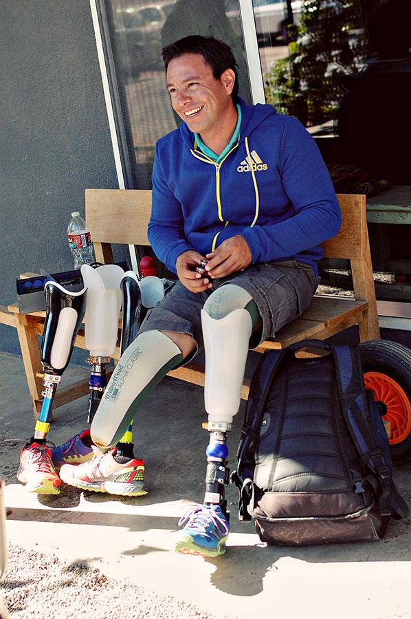Las prótesis de Carlos han estado raspando su piel, provocando dolorosas quemaduras. (Jacqueline Armendariz Reynolds/Borderzine.com)